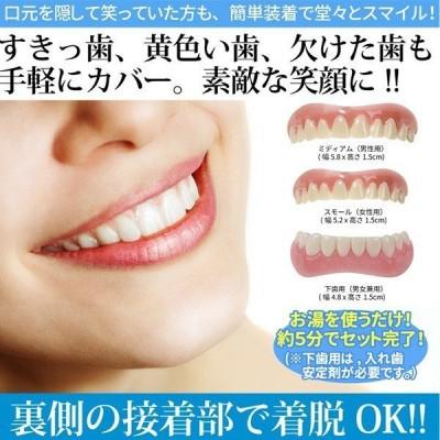 仮歯 付け歯 前歯 入れ歯 ワンタッチ ホワイトニング 歯 欠損 上歯 下歯 つけ歯 差し歯が取れた 応急処置 口コミ インスタントスマイル