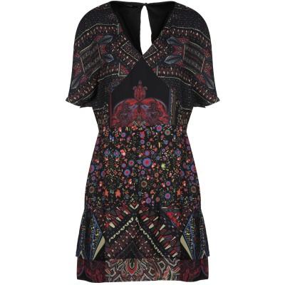 デシグアル DESIGUAL ミニワンピース&ドレス ブラック 36 ポリエステル 100% ミニワンピース&ドレス
